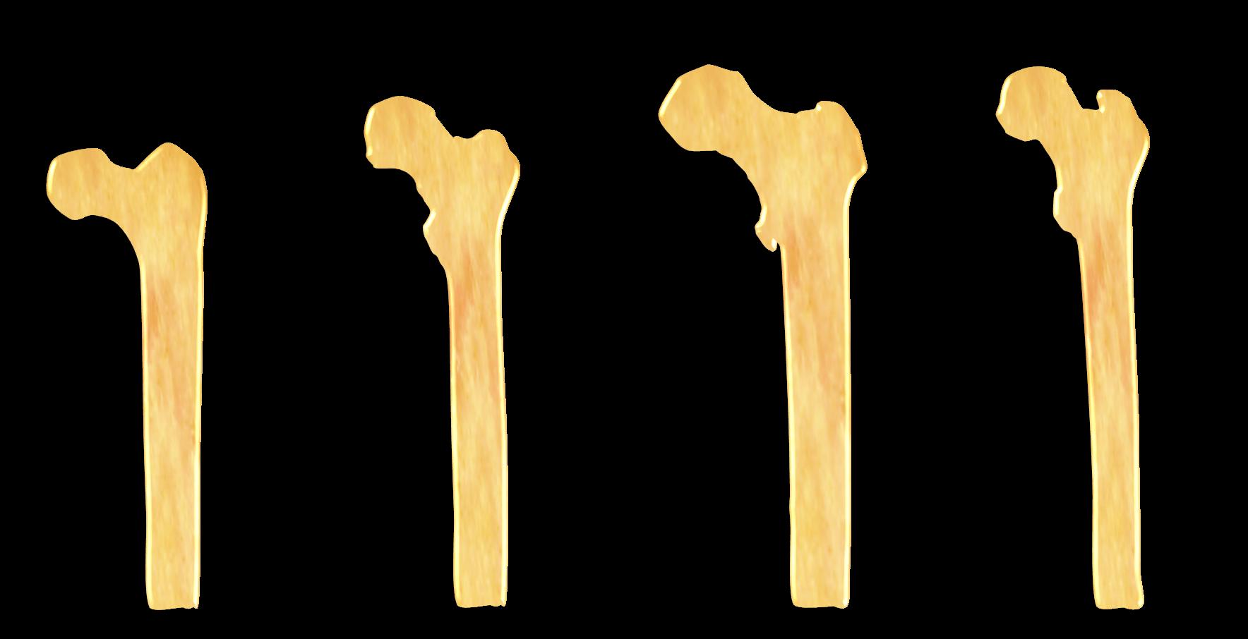 Oberschenkelknochen - Hüftgelenk - Hüftarthrose